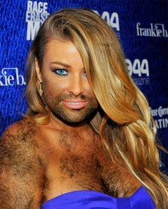 pilozitate excesiva femei cu barba
